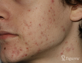 acne-1-before
