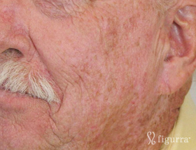actinic-keratosis-after