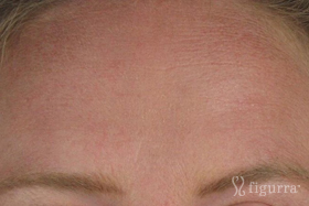 fine-lines-and-wrinkles-after