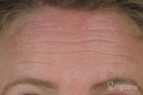 fine-lines-and-wrinkles-before