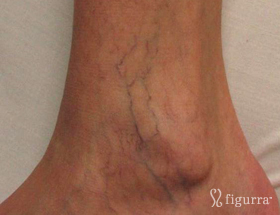 leg-veins-2-before