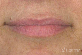 lip-enhancement-before