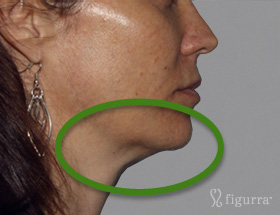 skin-tightening-after